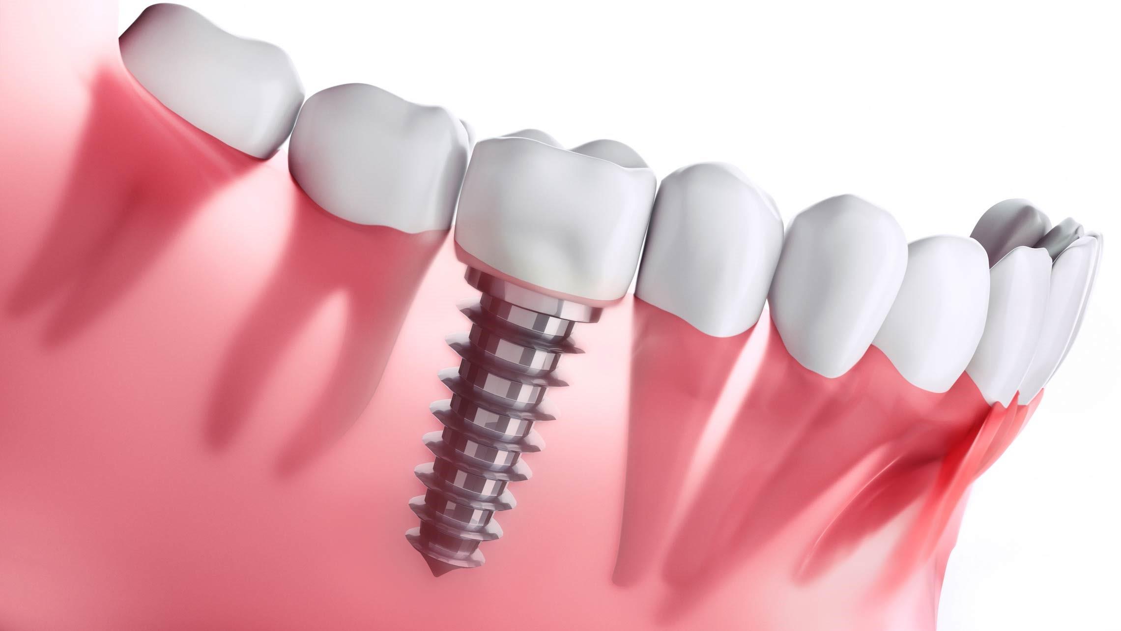 ایمپلنت-دندان-3