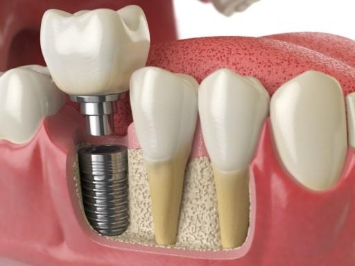 ایمپلنت-دندان-2