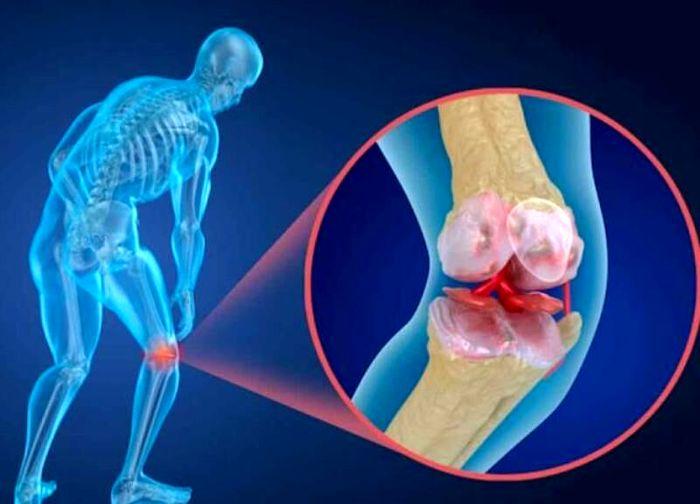 علائم هشدار دهنده پوکی استخوان