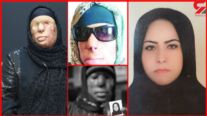 مادر کور و فرزند کشته شد! هولناکترین ماجرای اسیدپاشی / عکس