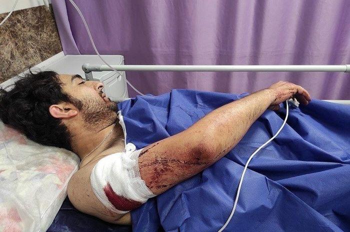 خشم اهالی رسانه از حمله وحشیانه به عکاس خبری