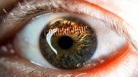 آیا کرونا قادر است چشم را آلوده کند؟