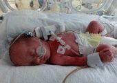 جراحی ساده جان نوزاد ۱۱ ماهه را گرفت!
