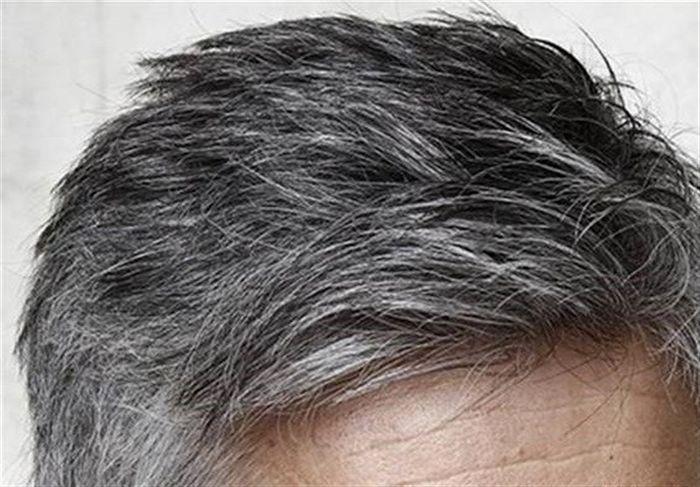 ماده ای مغذی که جوش را درمان و ریزش مو را متوقف می کند!